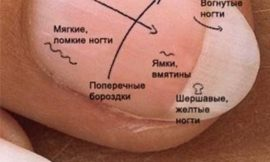 """Что означают """"метки"""" на ногтях"""