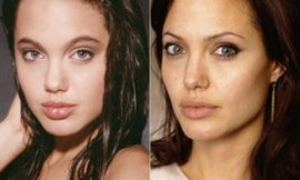 Как ринопластика изменила внешность знаменитостей