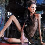 Красота, которая убивает: знаменитости, умершие от анорексии