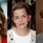 Как брекеты изменили внешность знаменитостей: фото