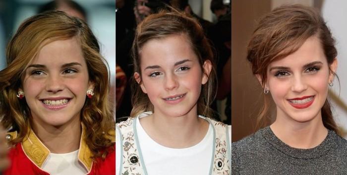 Как брекеты изменили внешность многих знаменитостей: фото