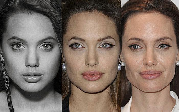 как меняется лицо после похудения фото