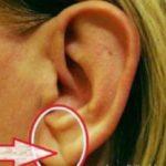 Признак Франка: как форма уха сигнализирует о болезнях сердца