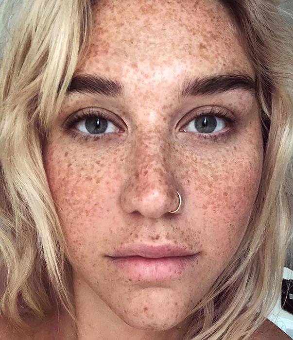 Знаменитости с веснушками: что раскрыли no-makeup-selfies